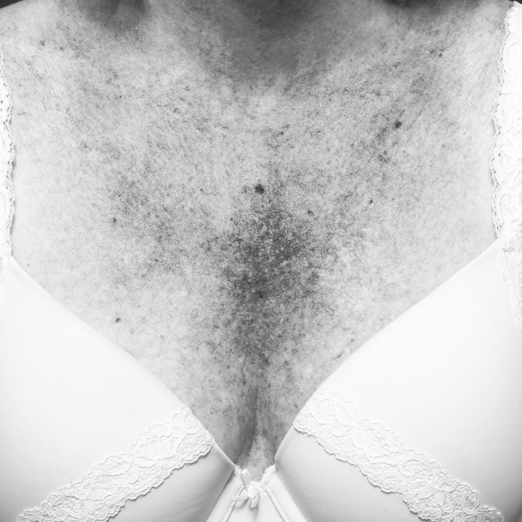 decolletage pigmentation before 1