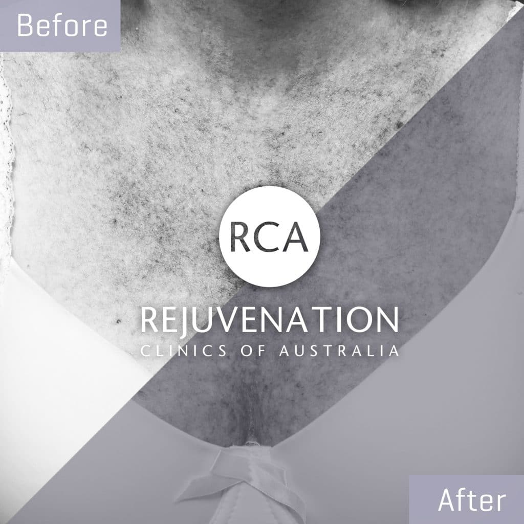 decolletage pigmentation before after 1