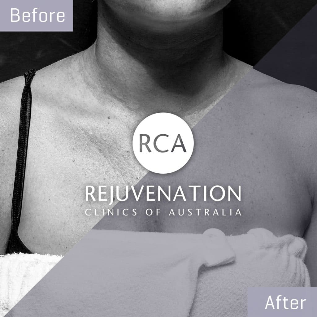 decolletage pigmentation before after