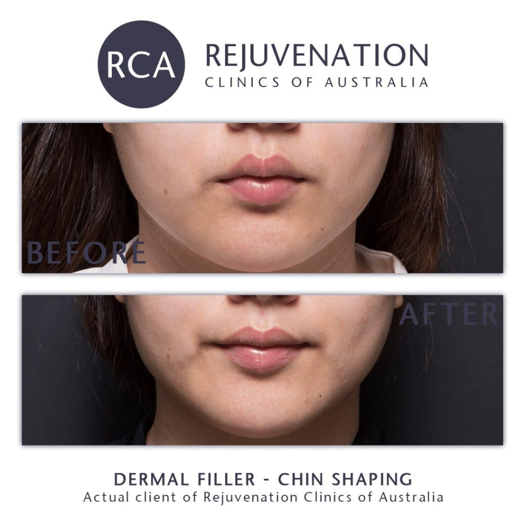 dermal filler chin shaping before after