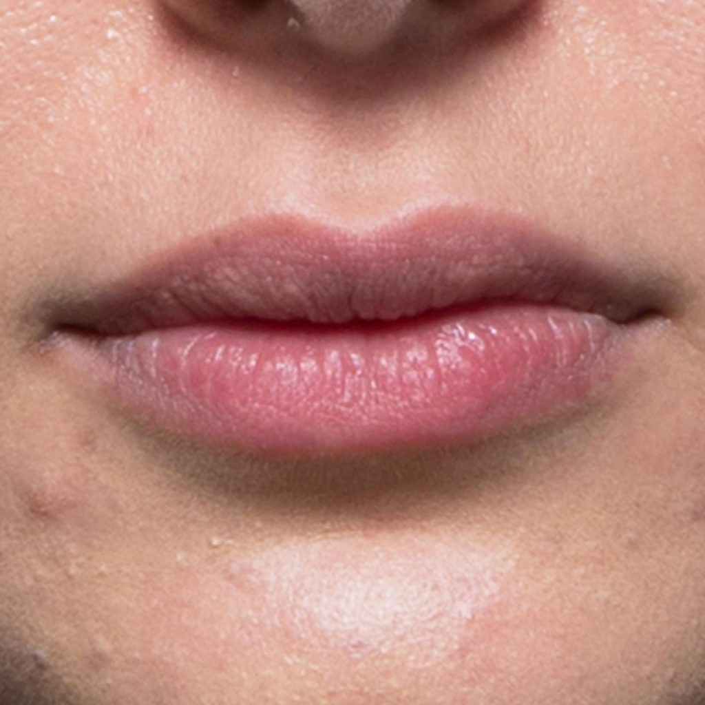 dermal filler lips AFTER 1