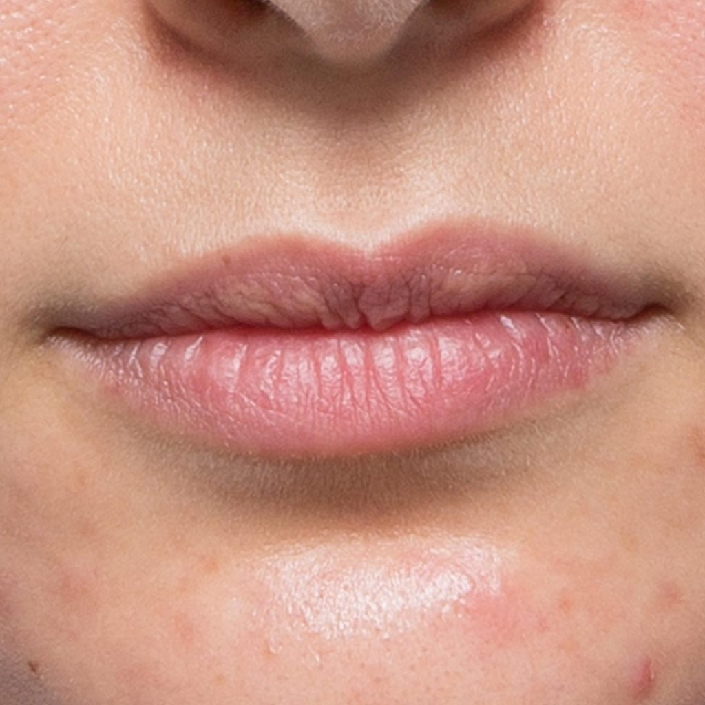 dermal filler lips BEFORE 1