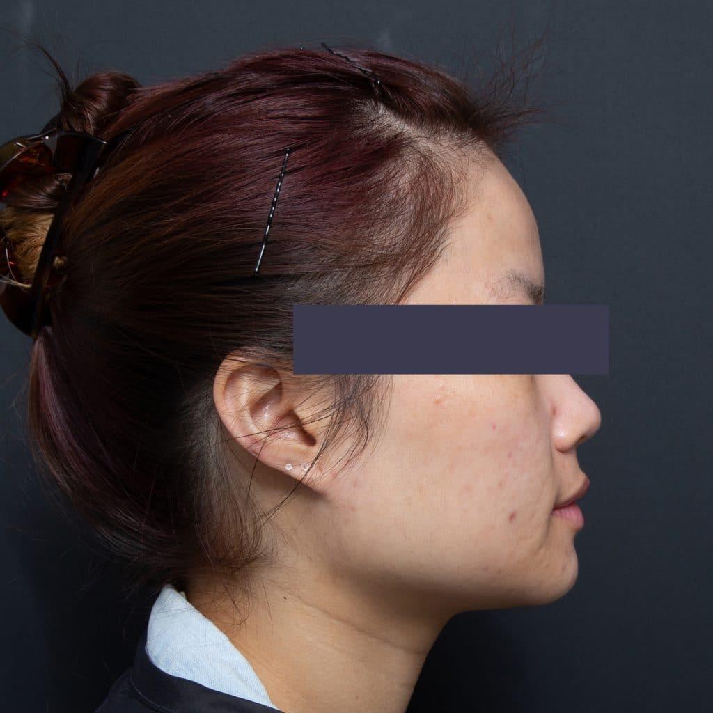 女性痤疮脸颊后