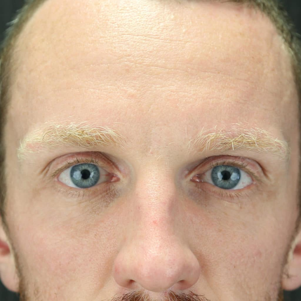 Forehead cosmetic injections treatment after