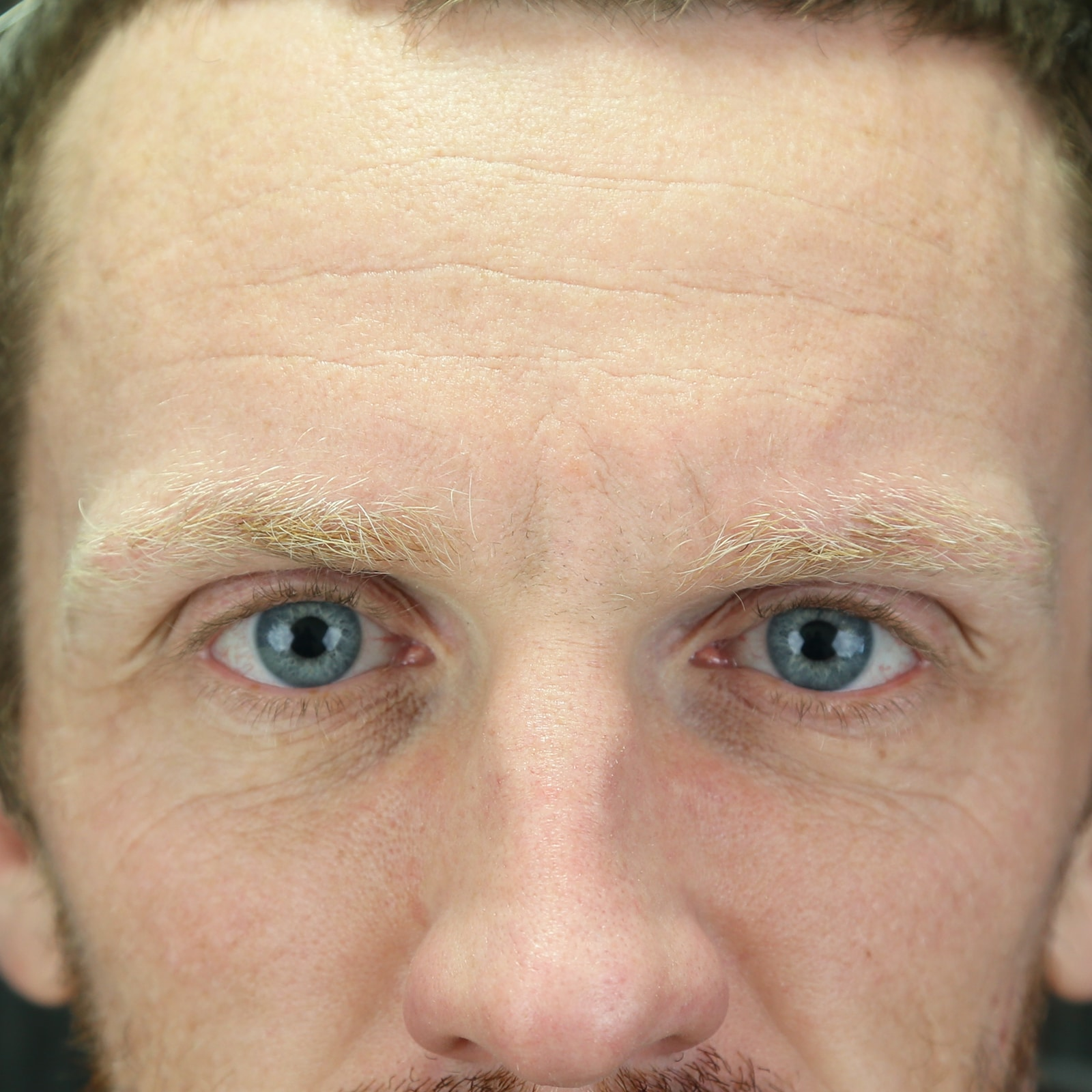 Forehead cosmetic injections treatment before
