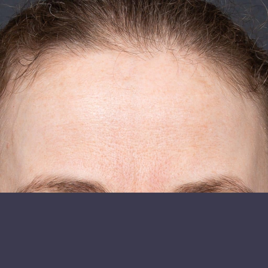 forehead wrinkles female after