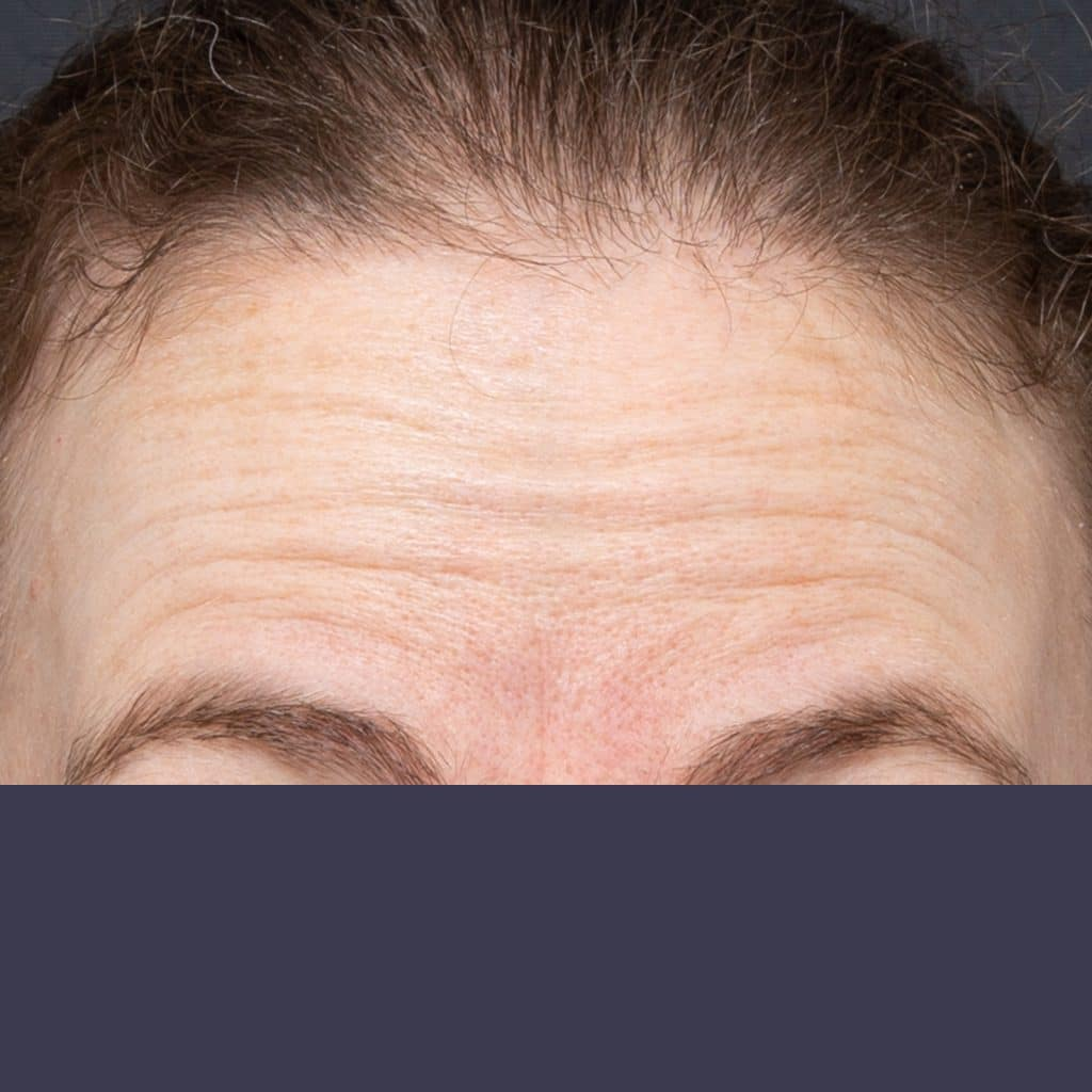 forehead wrinkles female before