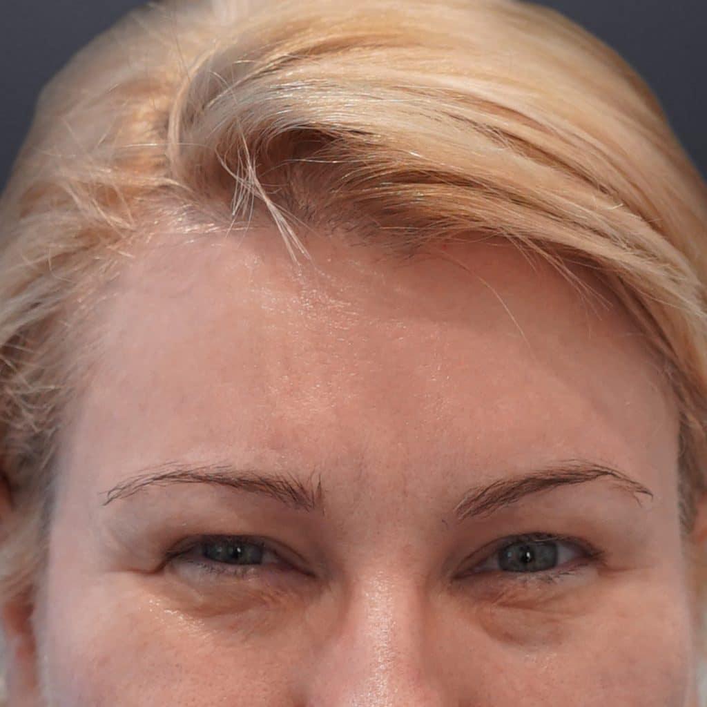 皱眉线女性后