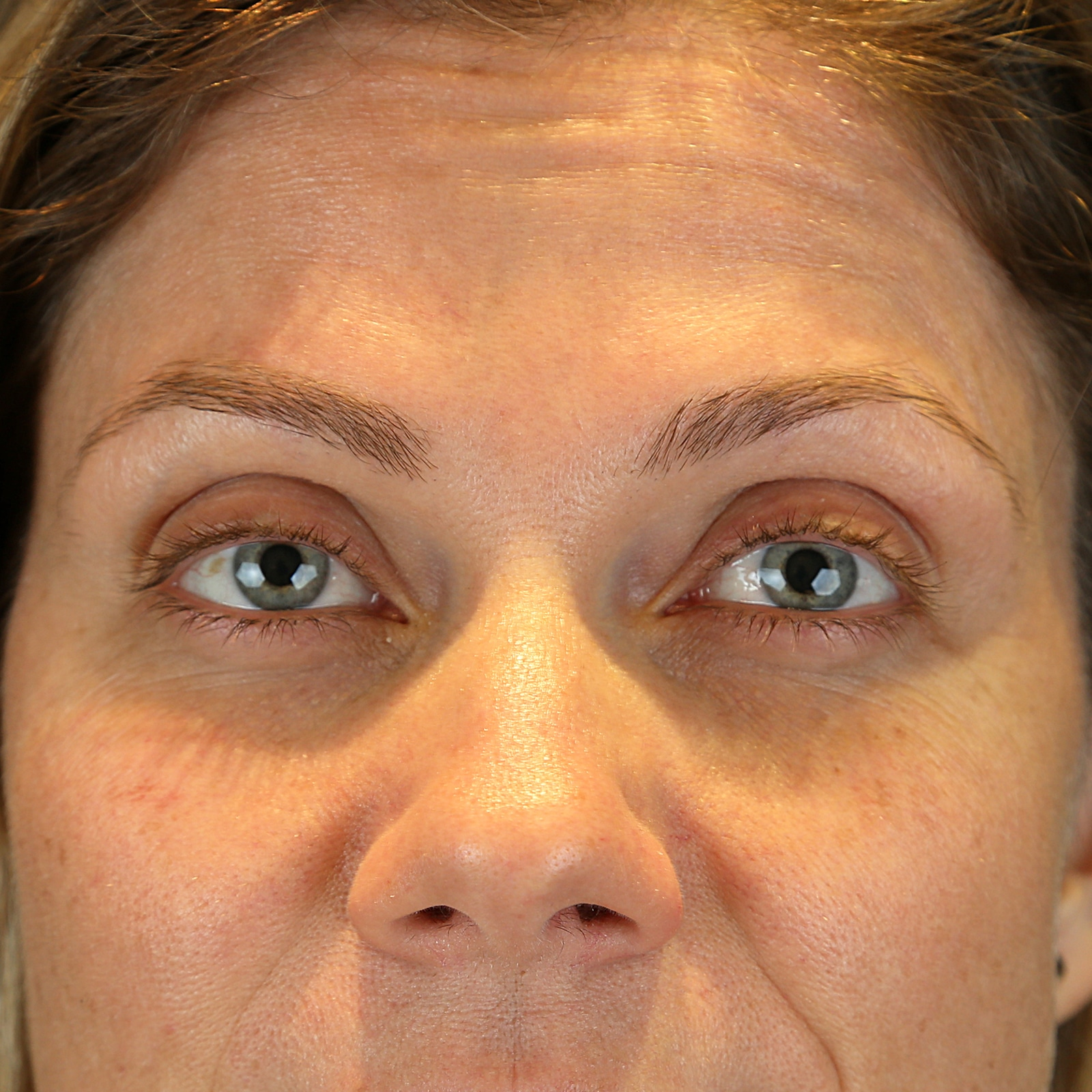 Glabella anti-wrinkle treatment after