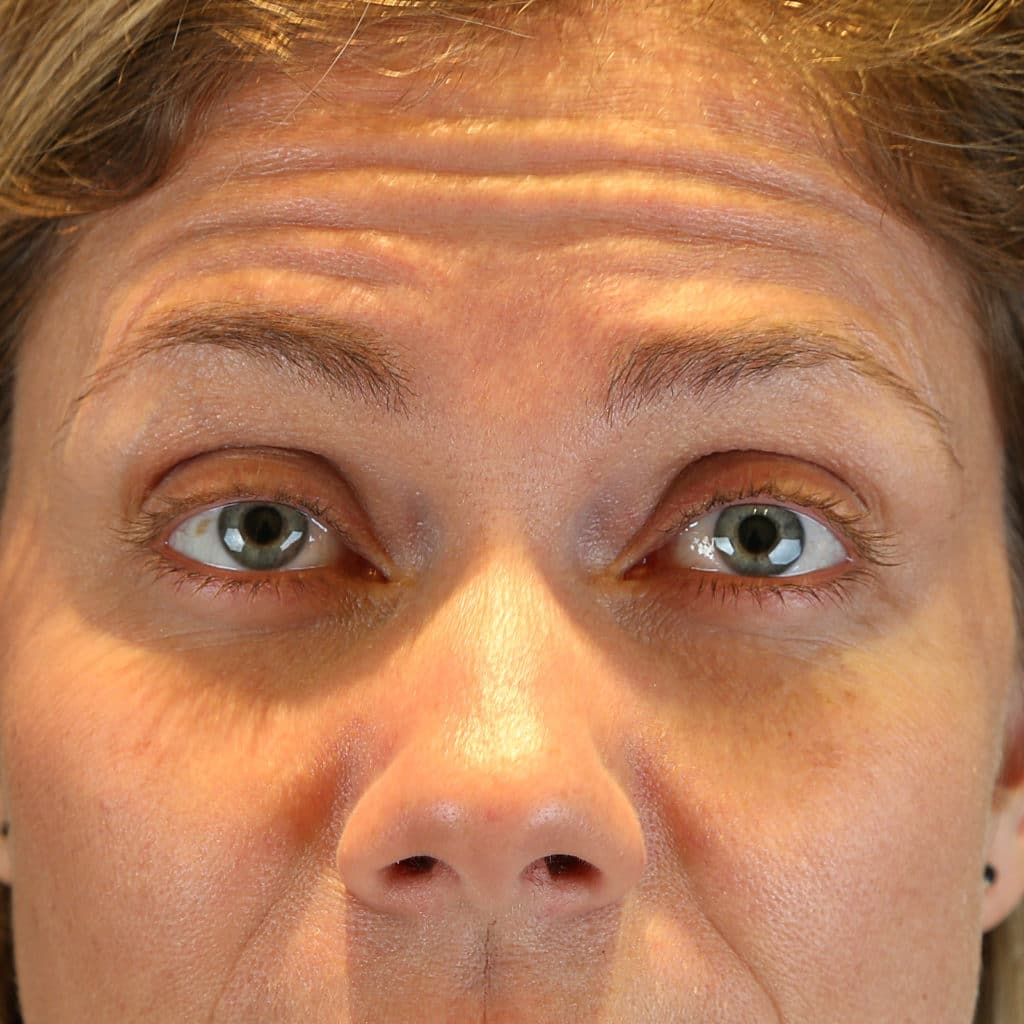 Glabella anti-wrinkle treatment before