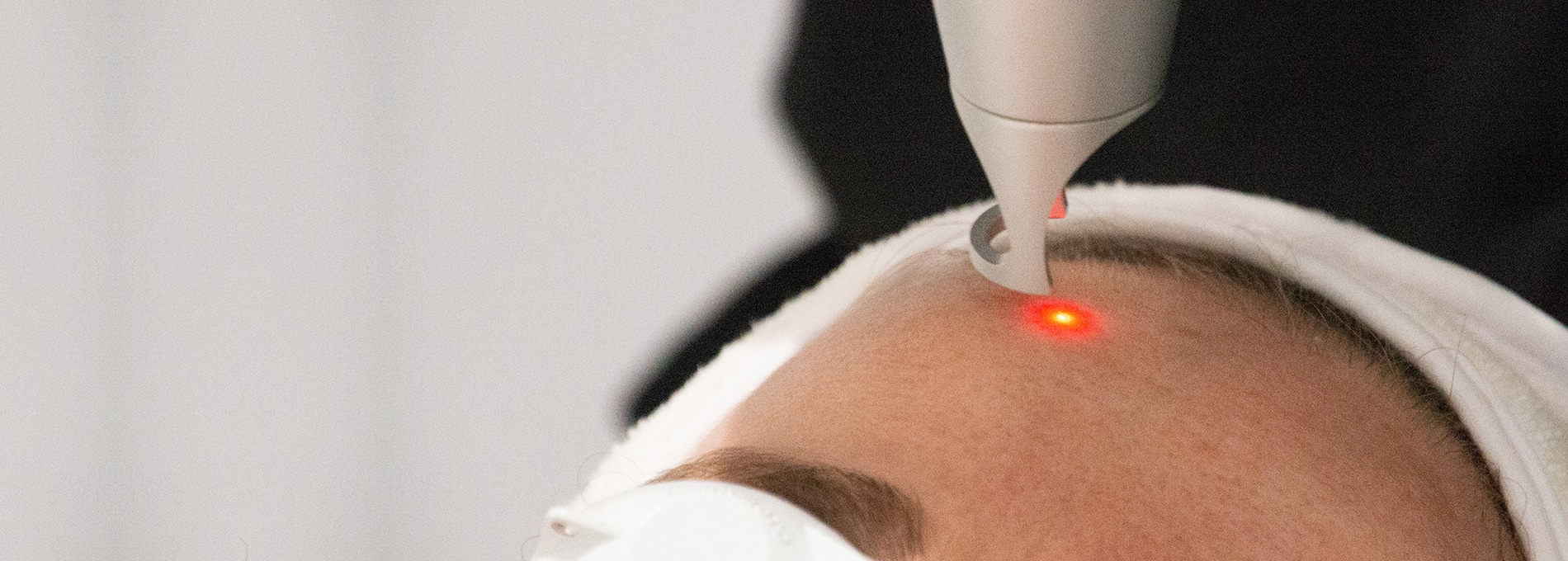 Pico Rejuvenation Even Skin Tone In Fewer Treatments