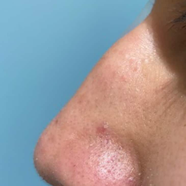 injectable rhinoplasty before