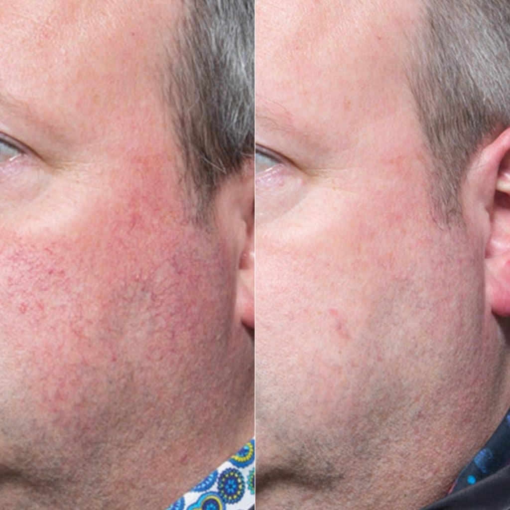 laser surface rejuvenation results