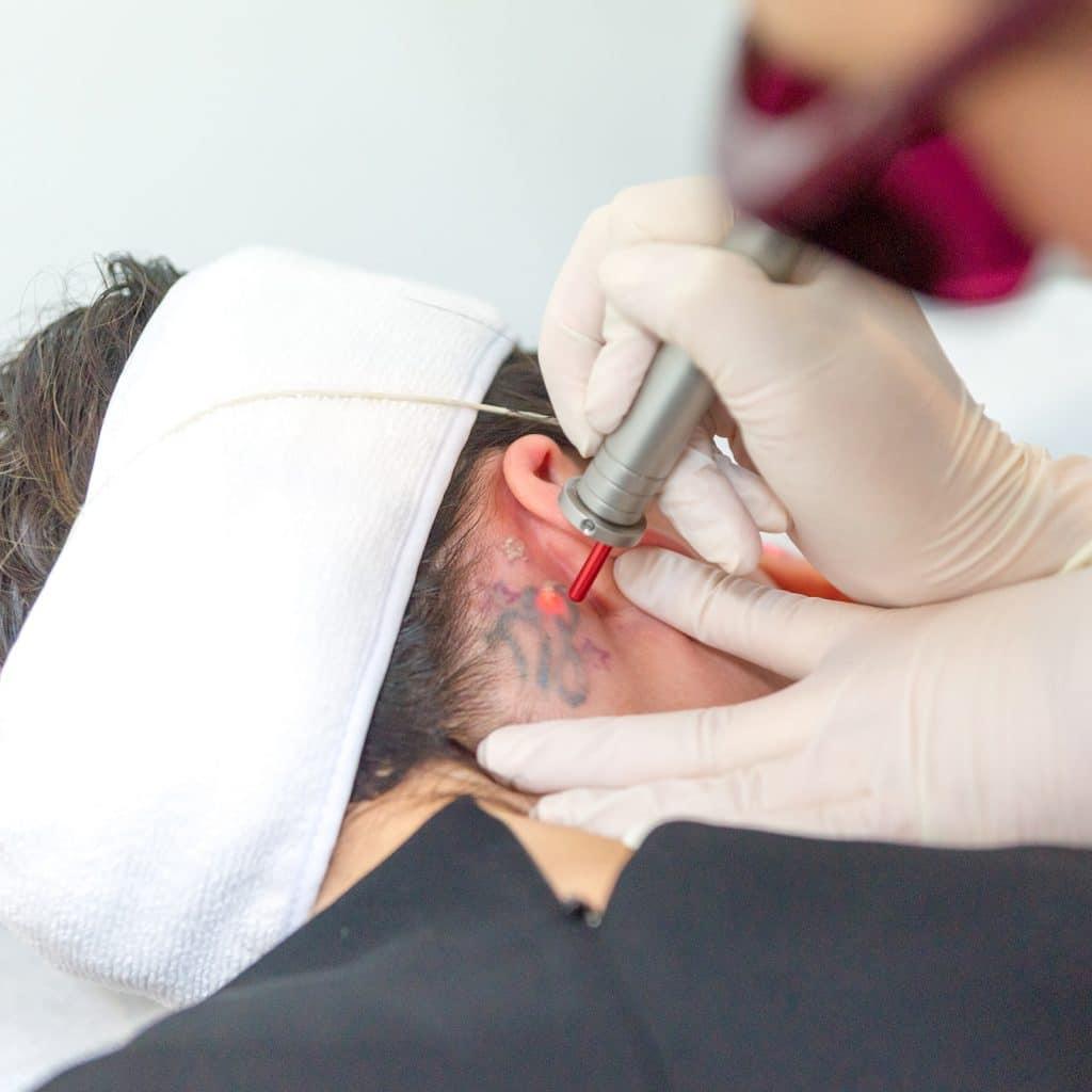 laster tattoo removal treatment