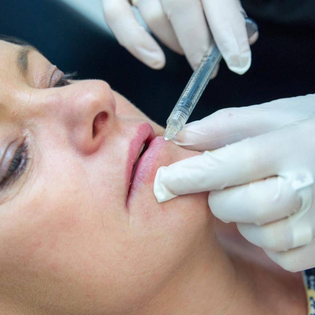lip filler injection 1