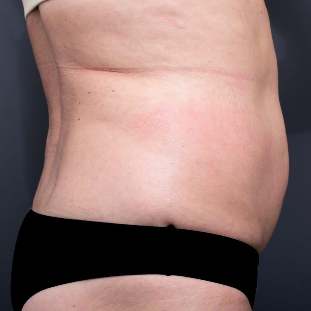 lipoblast oblique before