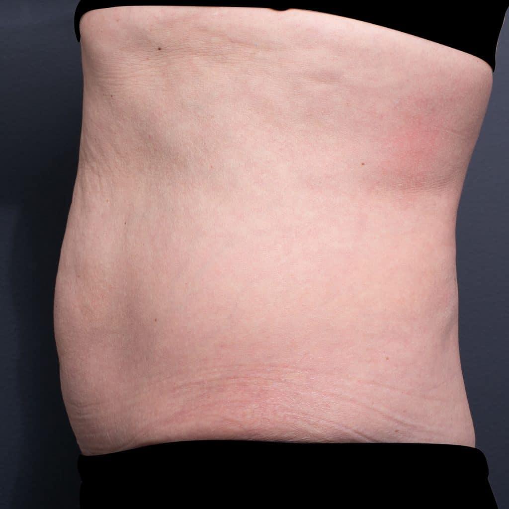 脂细胞胃轮廓后