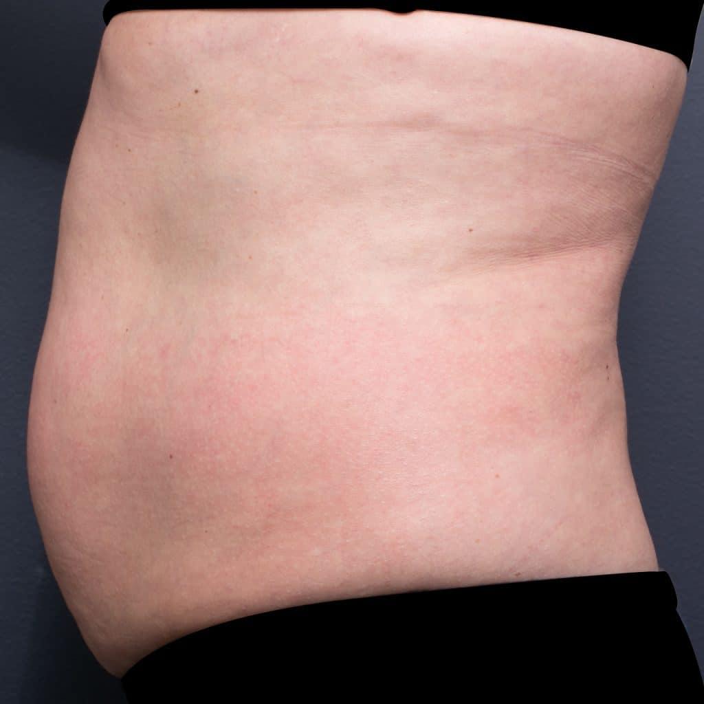 脂细胞胃配置文件之前