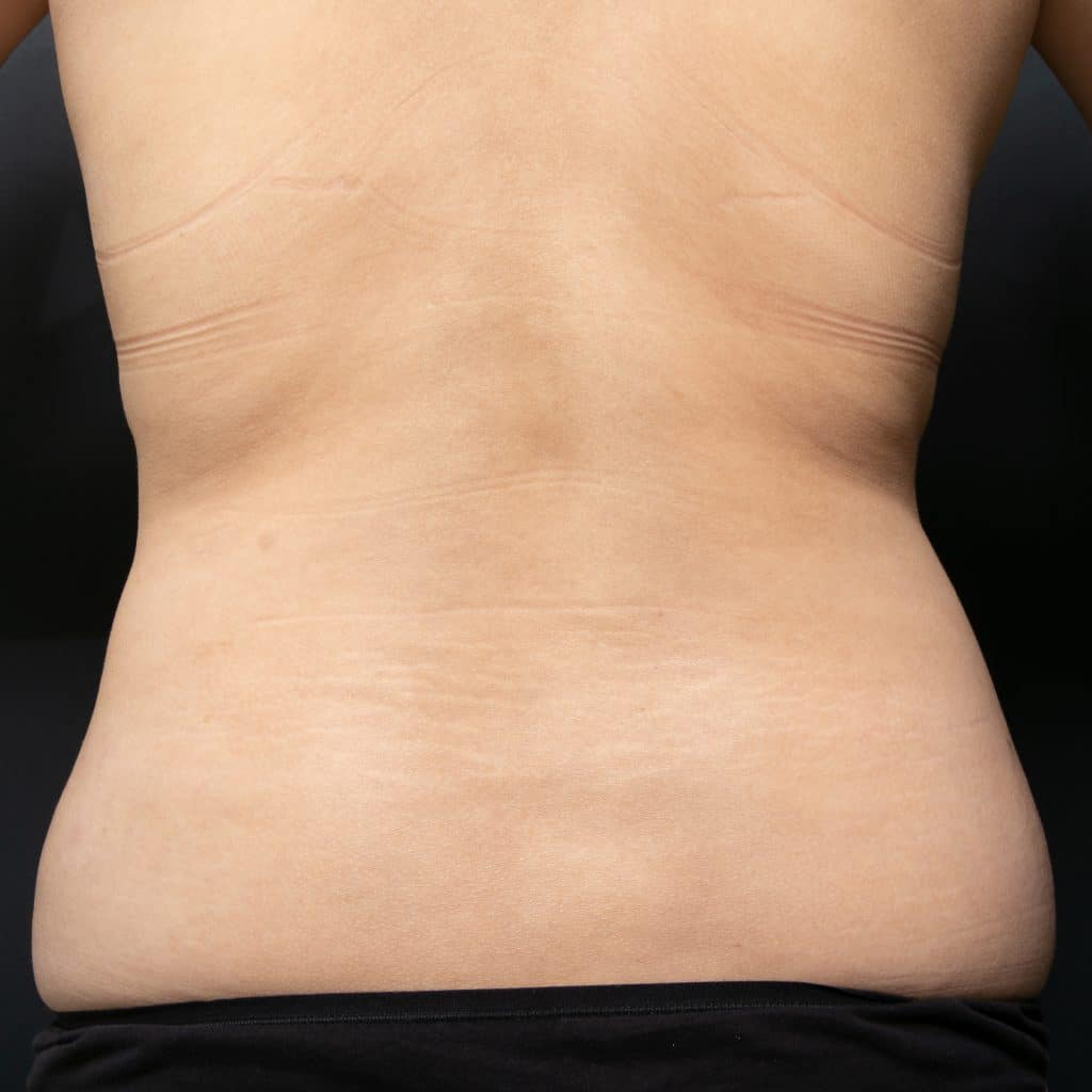 liposculpture female back after