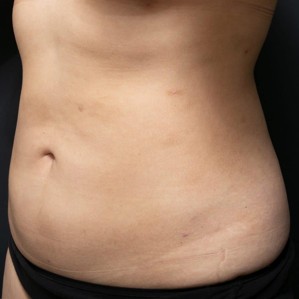 liposculpture female belly after