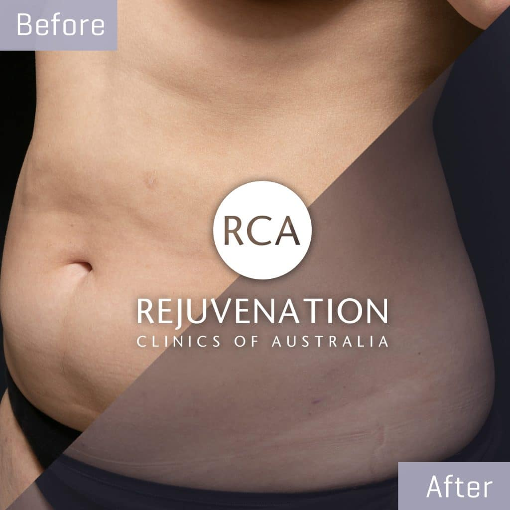 liposculpture female belly before after