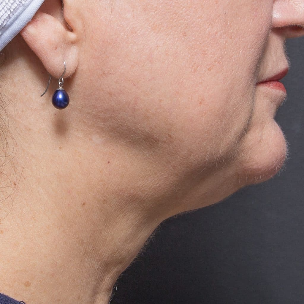 liposculpture female neck after