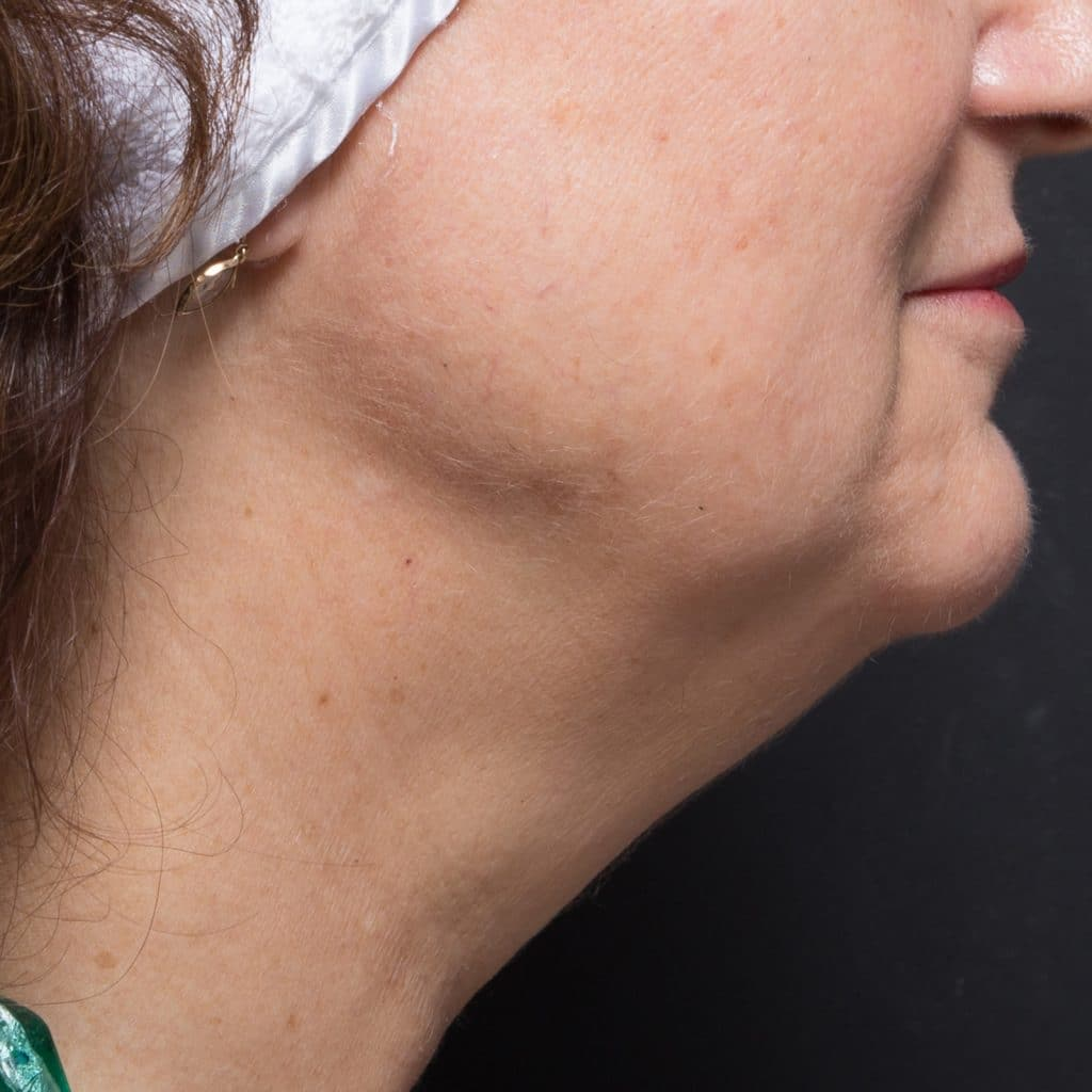 liposculpture female neck before
