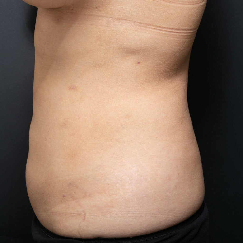 liposculpture female side after
