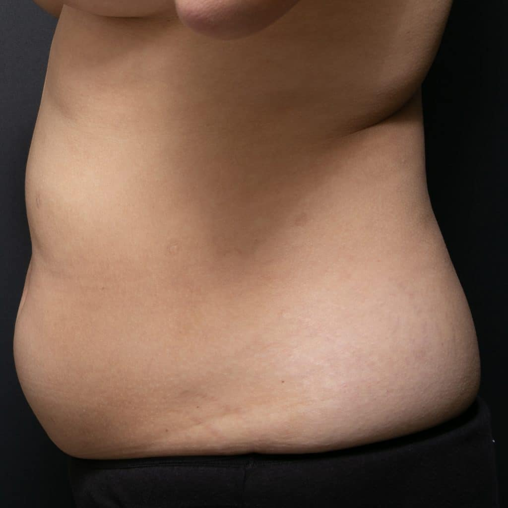 liposculpture female side before