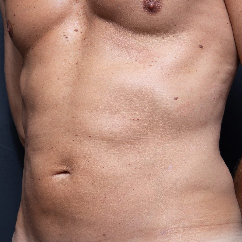 liposculpture male abdo after