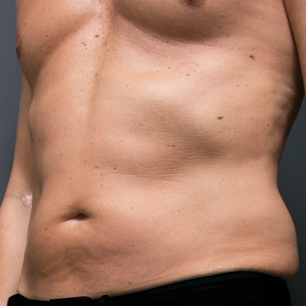 liposculpture male abdo before