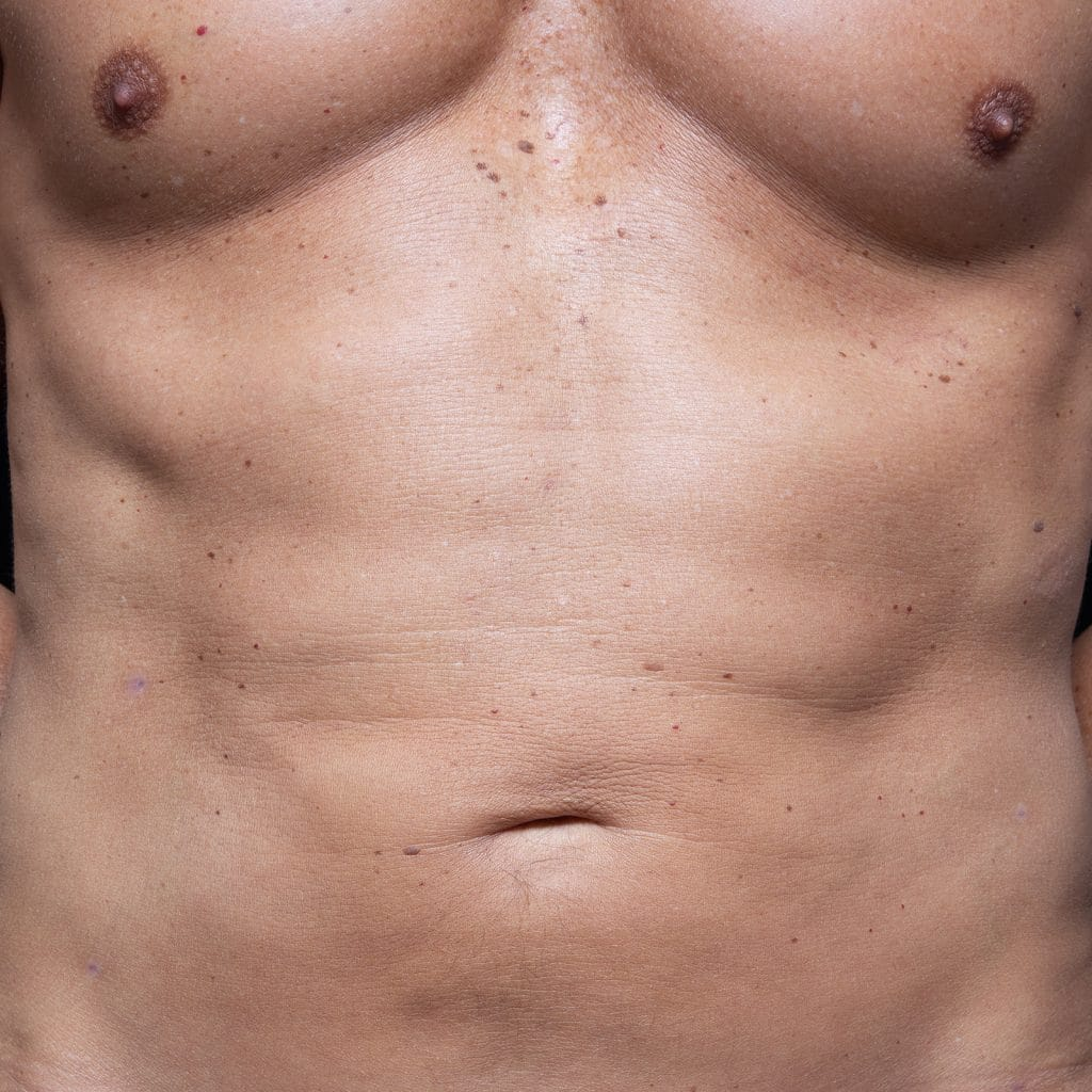 liposculpture male abdo front after