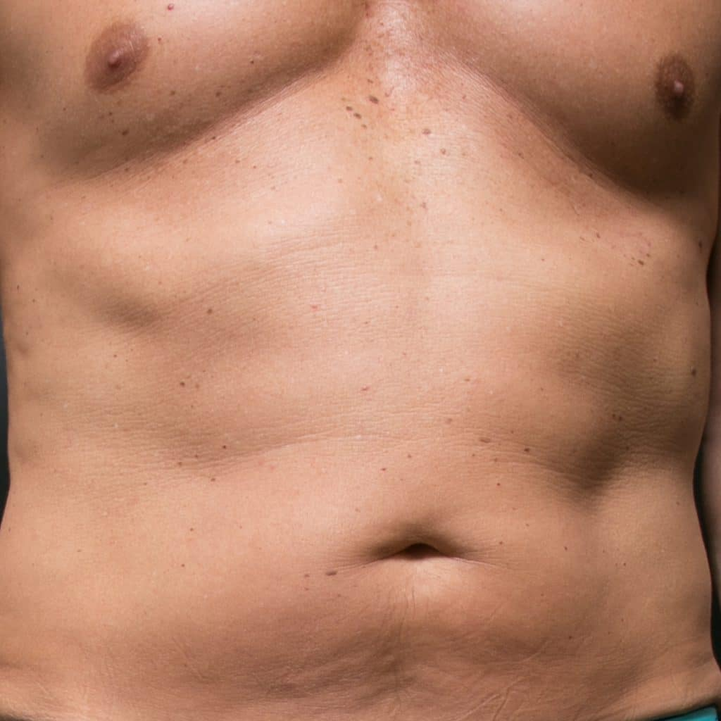 liposculpture male abdo front before