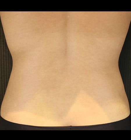 Liposculpture treatment back after