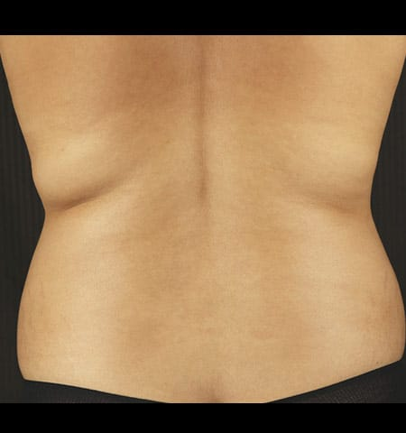 liposculpture treatment back before