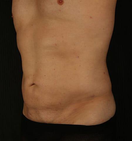 脂孔治疗男性腹肌后