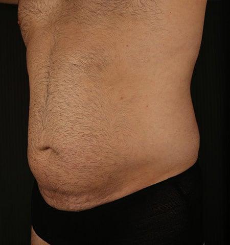 脂孔治疗男性胃之前