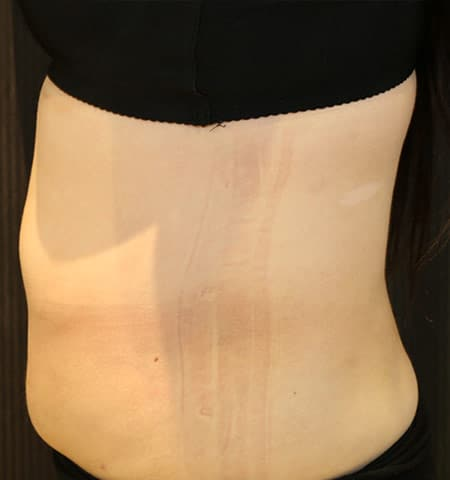 Liposculpture treatment side after
