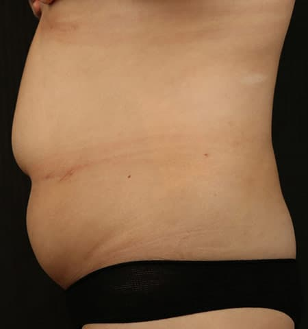 Liposculpture treatment side before