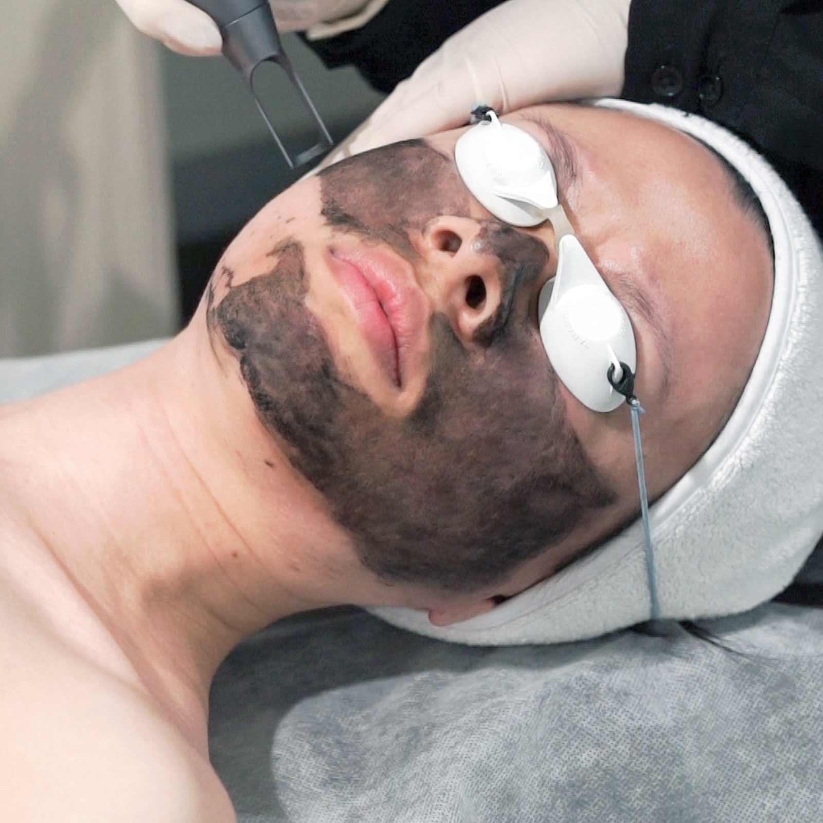 lorna jane china doll rejuvenation laser treatment1