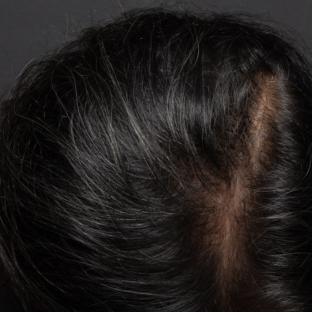 male prp hairloss after