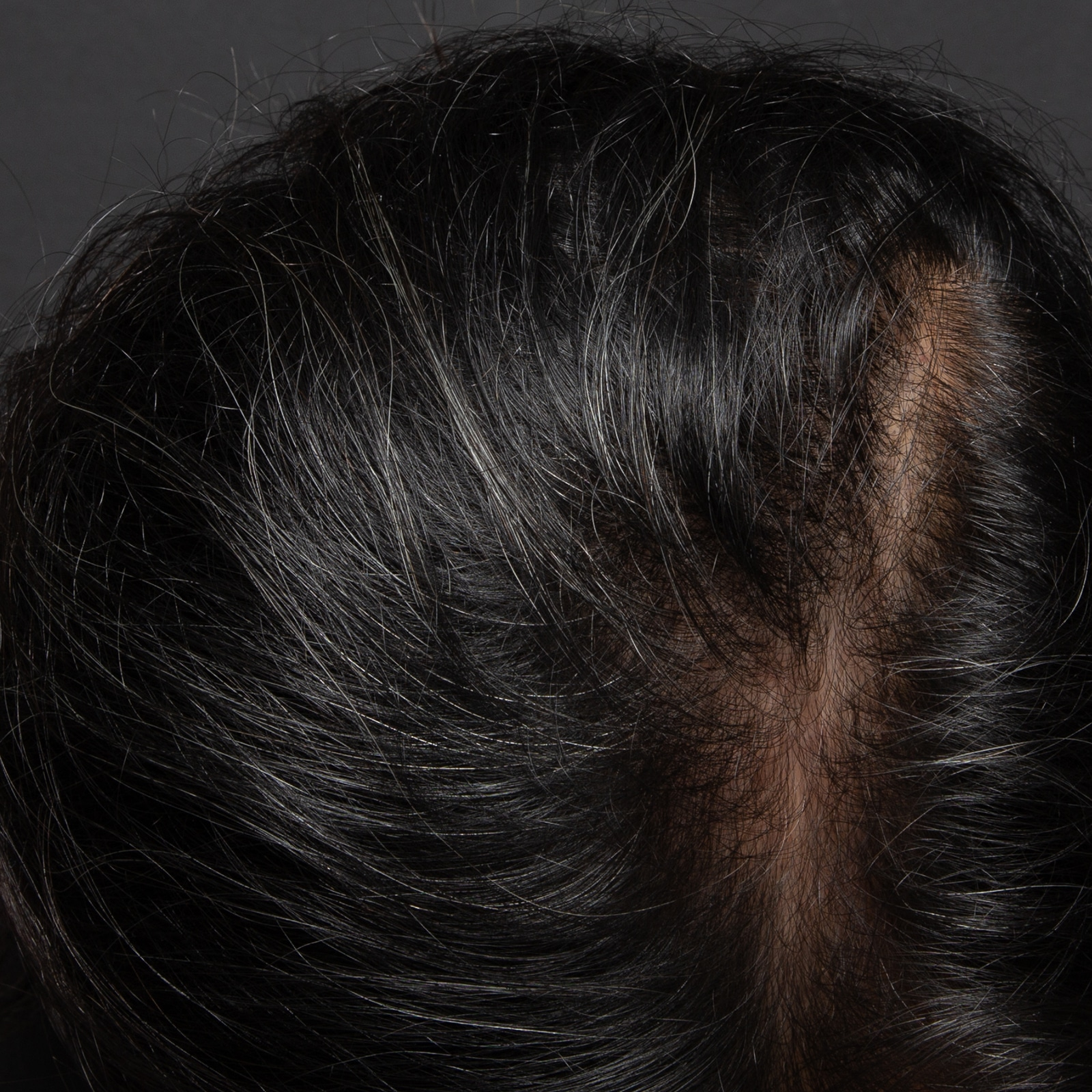 PRP For Hair Loss, Regrow Your Own Hair With Platelet Rich Plasma