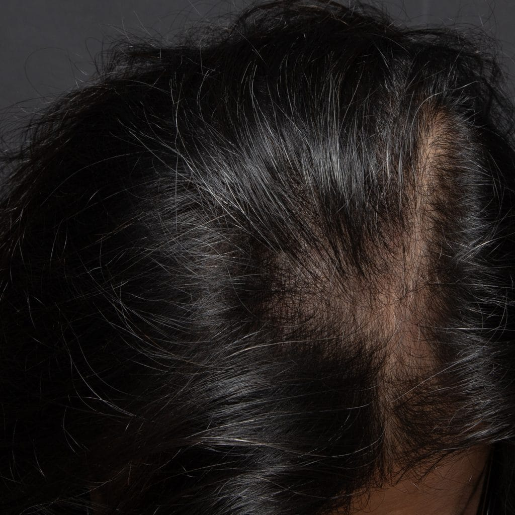male prp hairloss before