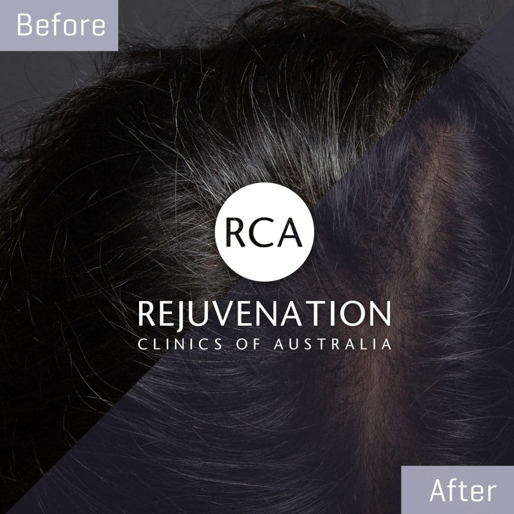 male prp hairloss before after