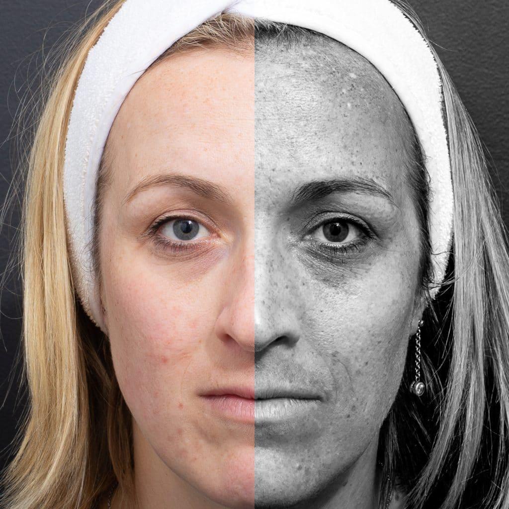 melasma half face