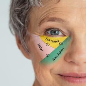 nasolabial face diagram