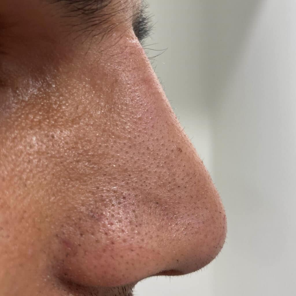 non surgical rhinoplasty after