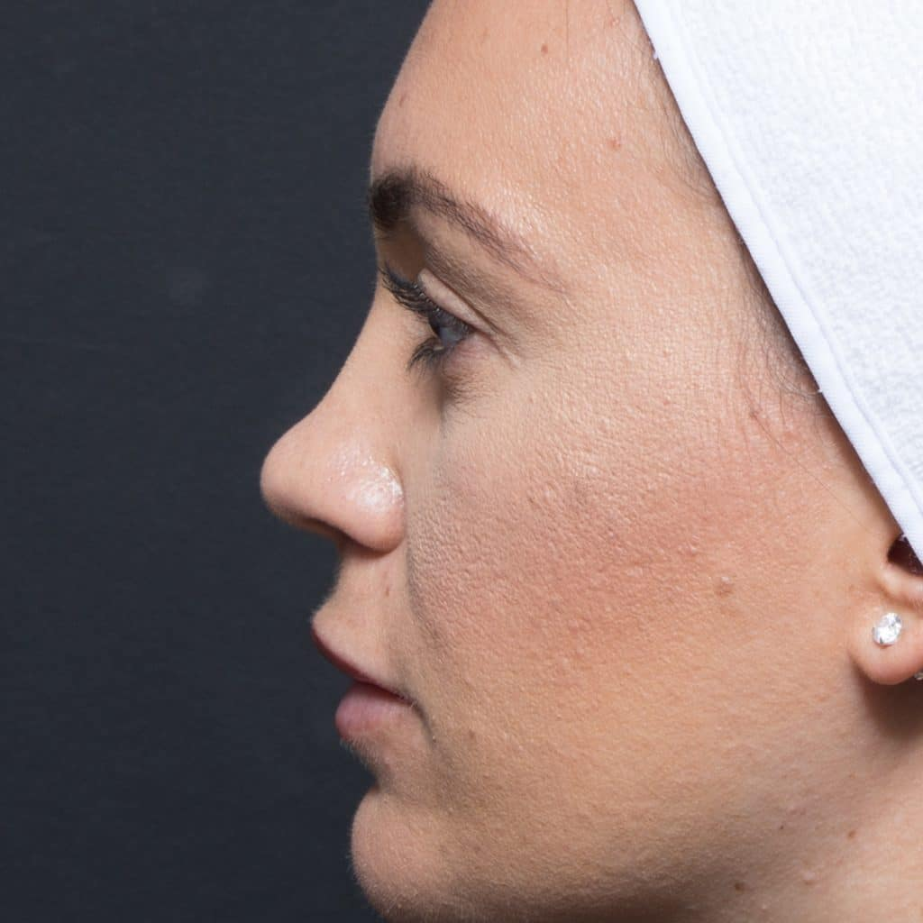 nose rhinoplasty before