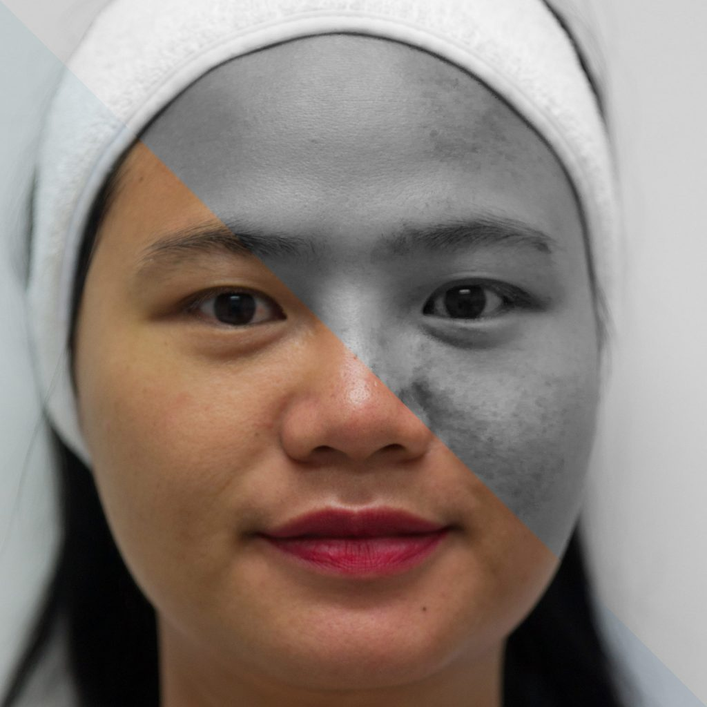 oxygen peel half face transition