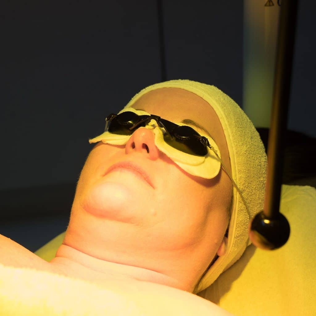 infrared phototherapy acne treatment